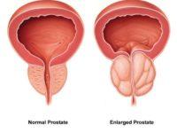Bệnh tăng sản tuyến tiền liệt ở nam giới